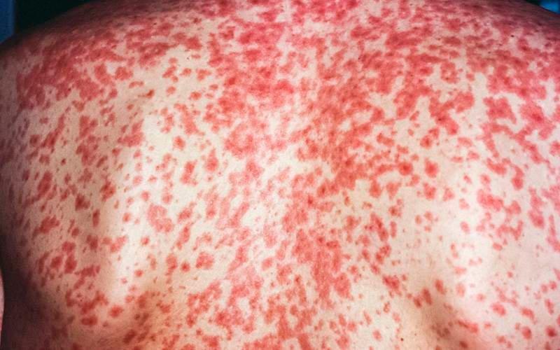 Ministério da Saúde atualiza casos de sarampo