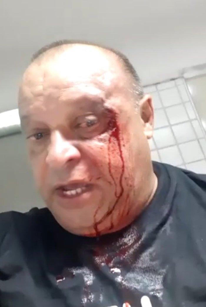 Prefeito Assis Ramos de Imperatriz, agride jornalista Justino Filho