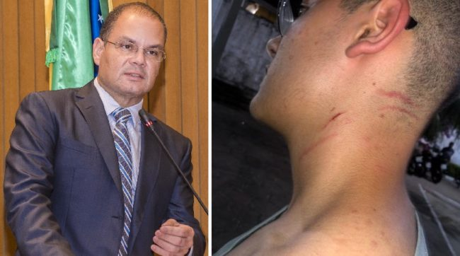 VÍDEO! Jovem acusa secretário do governo de agressão