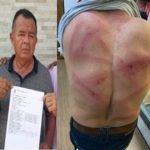 Vereador de Bom lugar é emboscado e espancado em estrada vicinal de Bacabal